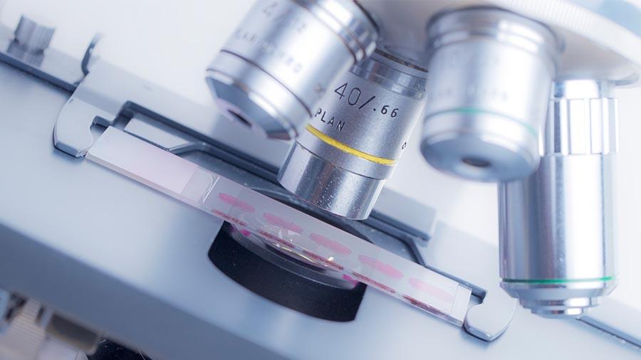 Microscopio para analizar una biopsia ginecológica